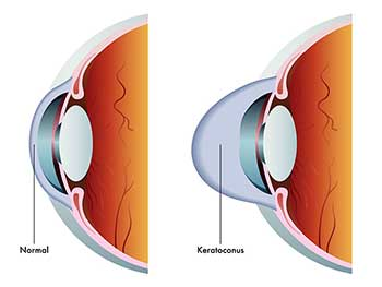 Keratoconus in Bay Shore